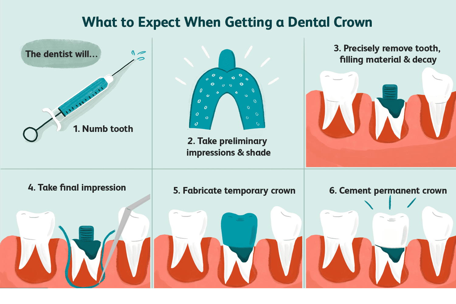 numbing-the-tooth-in-a-dental-crown-procedure-1059036_final-788dfa05acf24255aa0d406f45df1b31.png